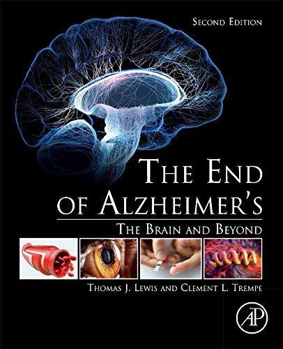 The End Of Alzheimer S  Second Edition  The Brain And Beyond