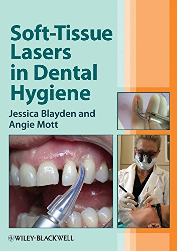 - [Soft-Tissue Lasers in Dental Hygiene] (By: Jessica Blayden) [published: January, 2013]