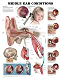 Middle Ear Conditions Anatomical Chart 9781587792885