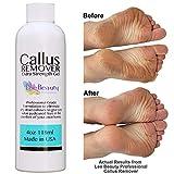 Best Callus Remover. Callus EliminatorLiquid & Gel For Corn And Callus On Feet. Professional Grade