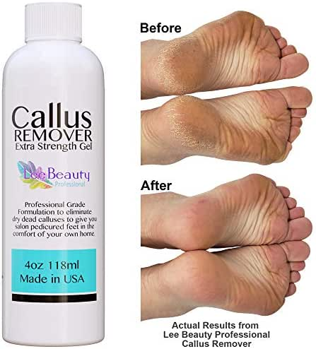 Callus Remover gel for feet, pair with pumice stone & foot bucket for a professional pedicure. Better results than, foot file, foot scrubber & callus shaver. Rid ugly callouses from feet in minutes!