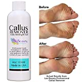 Callus Remover gel for feet, pair with pumice stone & foot bucket for a professional pedicure. Better results than, foot file, foot scrubber & callus shaver. Rid ugly callouses from feet in minutes!: more info