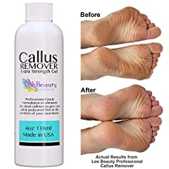 Discover the secret to salon pedicured feet at home! At last there is Salon Grade Callus Remover Available For At Home Use!  Lee Beauty Professional Callus Remover Can remove up to 20 years worth of Calluses within 1-2 uses! -Get rid of stubb...