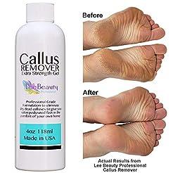 Best Callus Remover, Callus Eliminator, ...