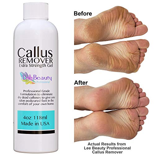 Callus Remover gel for feet, pair with pumice stone & foot bucket for a professional pedicure. Better results than, foot file, foot scrubber & callus shaver. Rid ugly callouses from feet in minutes! from Lee Beauty Professional