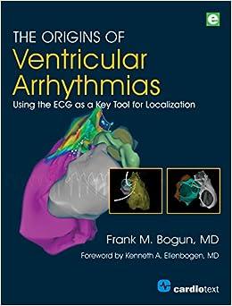 The Origins Of Ventricular Arrhythmias: Using The Ecg As A Key Tool For Localization por Frank M. Bogun epub