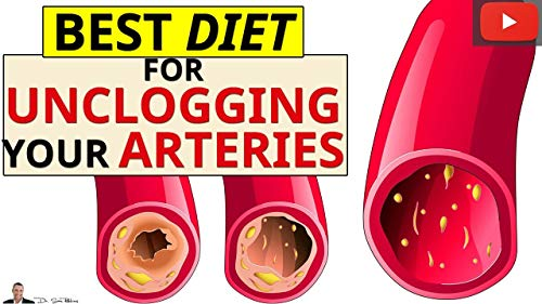 Best Diet For Removing Calcium Deposits & Plaque Buildup From Your Arteries