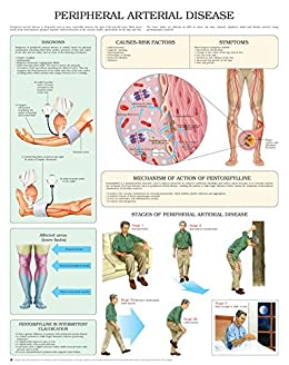 Urethral Pain 51wMg8-1QJL._SX260_