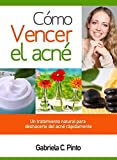 Cómo Vencer el Acné: Un tratamiento natural para deshacerte del acné rápidamente (Spanish Edition)