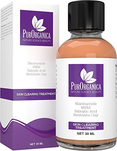 PurOrganica ACNE SPOT TREATMENT - Enhanced Fast Drying Correcting Formula for Clear and Clean Skin - Spot Remover With 2.5% Salicylic Acid, Niacinamide and 10% MSM - Shrinks Whiteheads and Fades Out Face Blemishes - 30ML - 100% Satisfaction or Your b