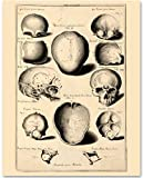 Skulls - 11x14 Unframed Art Print - Great Gift for Medical and Nursing Students