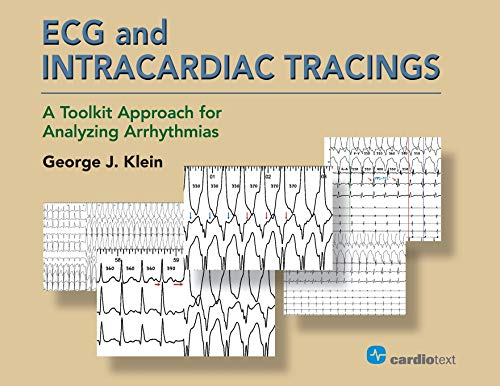 ECG and Intracardiac Tracings: A Toolkit Approach for Analyzing Arrhythmias - http://medicalbooks.filipinodoctors.org