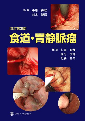 Download Esophagus, stomach varices (2012) ISBN: 4888752478 [Japanese Import] pdf