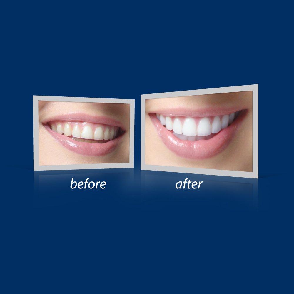 Beyond International Gemini Teeth Whitening Accelerator Home Edition