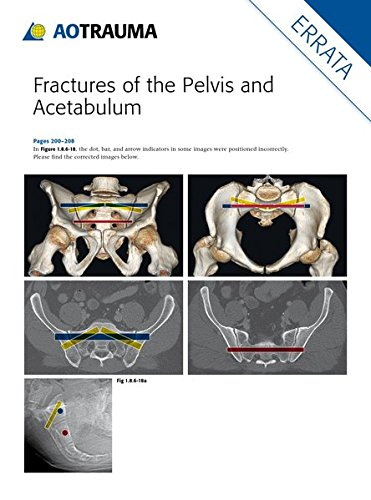 Fractures of the Pelvis and Acetabulum (AO): Principles and Methods of Management