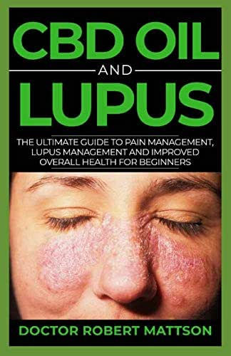 CBD Oil And Lupus: The Ultimate Guide To Pain Management, Lupus Management And Improved Overall Wealth For Beginners