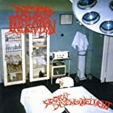 Surgical Disembowlment by Dead Infection