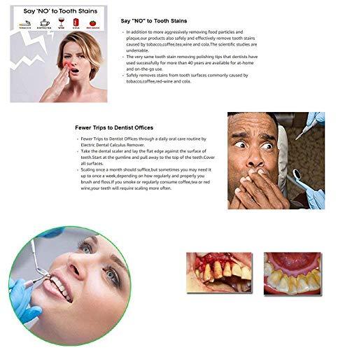 Amazon com : Kuke Ultrasonic Dental Calculus and Plaque Remover, 2