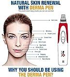 Mym Micro Needle Pen Derma Pen For Acnescars Removal