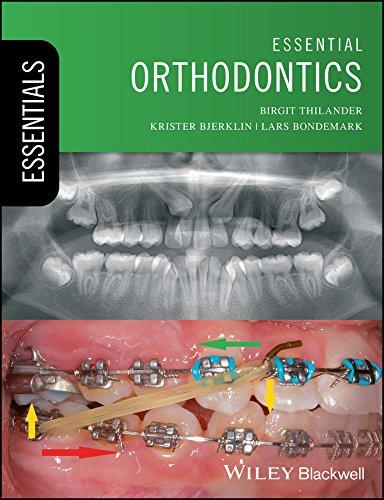 Rakosi Orthodontic Diagnosis Pdf