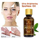 ❤️ Sunbona Clearance ALIVERl Blemish Essential Oil Decomposition Pigment Whiten Moisturizing Anti Wrinkle Drainage (A)