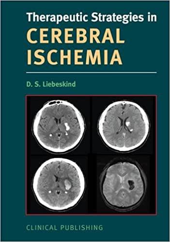 Cerebral Ischemia (Therapeutic Strategies) (Therapeutic Strategies in ...)