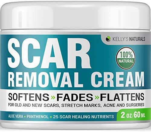 KELLY'S NATURALS Scar Removal Cream - Perfect for Stretch Marks - Natural Formula with Aloe Vera, Vitamin E & Citric Acid - Made in USA - Effective for Old Scars & Acne Scars - 2 OZ