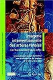 Imagerie Interventionnelle des Artères Rénales, Beregi, Jean-Paul, 2287094180