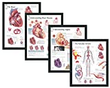 "Set of 4 Framed Medical Posters The Heart Understanding Heart Disease Understanding Angina The Vascular System 22""x28"" Wall Diagrams Educational Informational Doctors Office Charts"