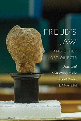 Freud's Jaw and Other Lost Objects: Fractured Subjectivity in the Face of (Fractured Faces)
