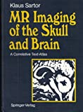 MR Imaging of the Skull and Brain : A Correlative Text-Atlas, Sartor, Klaus, 354052293X