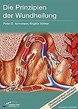 Die Prinzipien der Wundheilung: Wundtypen, Wundheilungsvorgänge und Wundheilungsstörungen