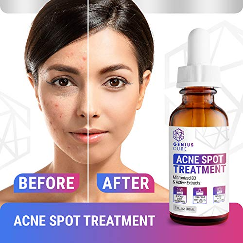 GENIUS Acne Spot Treatment Serum for Acne Prone Skin, Mild, Moderate, Severe, Cystic Acne - Premium Tea Tree Oil, Plant… 5