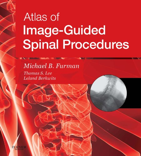 SPEC - Atlas of Image-Guided Spinal Procedures E-Book 12 Month Subscription