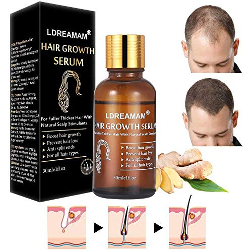 Hair Growth Serum,Hair Treatment Serum Oil,Hair Serum,Hair Growth Treatment,Hair Regrowth of Thinning Hair - Promotes Hair Growth,Stops Hair Loss,Thinning,Balding,And Promotes Hair Regrowth (30ML) (Oil For Hair Regrowth On Bald Head)
