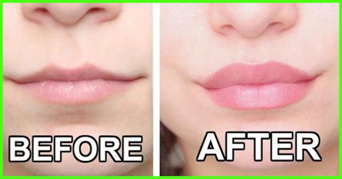 Lip Plumper Device - Lip Plumpers That Really Work - Electric Automatic Two in One - Portable - Lip Enhancer - Fuller Lips - Plump It - USB Rechargeable - Real Lip Injection Results - Best & Safe