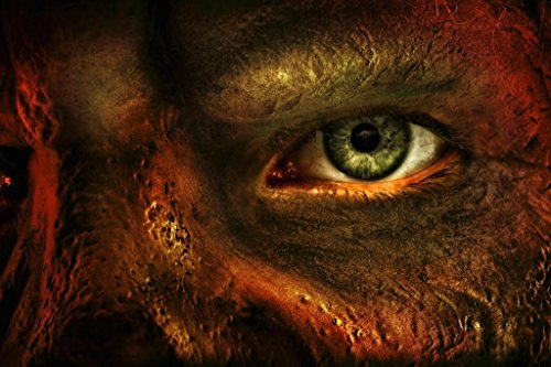 Laminated Close Up of Mans Eye and Burned Skin Horrific Photo Art Print Sign Poster 18x12 inch ()