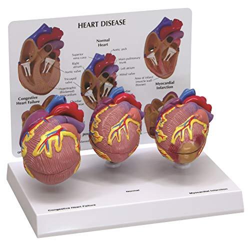 3 Piece Mini Heart Disease Anatomical Model #2550