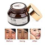 Remove Freckle Sunburn Speckle Cream Fade Dark Spot Melanin Whitening Moisturizing Cream