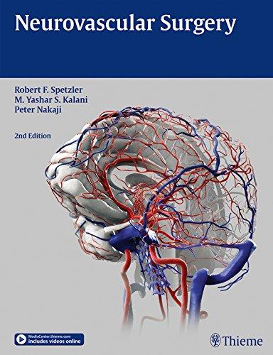 Neurovascular Surgery Pdf