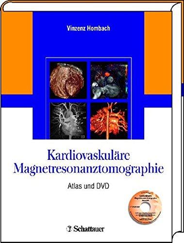 Kardiovaskuläre Magnetresonanztomographie: Atlas und DVD