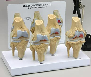 4 stage osteoarthritis knee anatomical classroom education model cem 4 stage osteoarthritis knee anatomical classroom education model cem ccuart Images