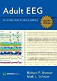 Adult EEG, Second Edition DVD: An Interactive Reading Session