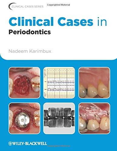 Clinical Cases in Periodontics: 42 (Clinical Cases (Dentistry))