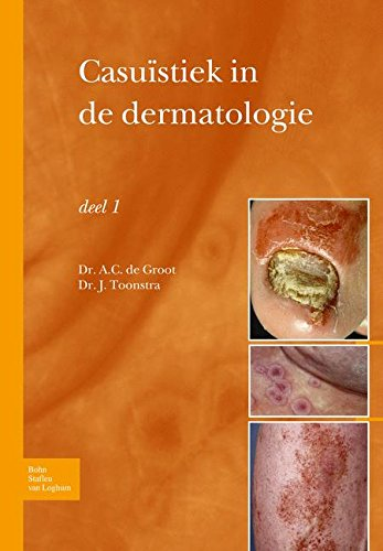 Casuïstiek in de dermatologie - deel I (Dutch Edition)