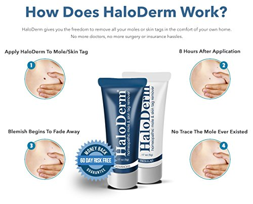 haloderm advanced mole and skin tag remover