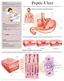 Peptic Ulcer e-chart: Full illustrated