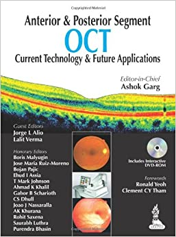 Anterior and Posterior Segment OCT: Current Technology and Future Applications