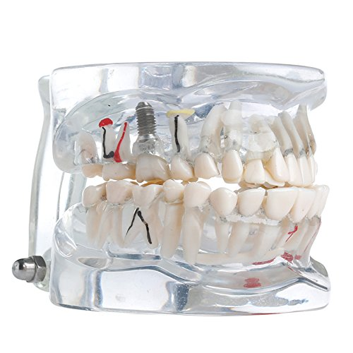 Mimgo Store Dental Implant Disease Study Teaching Adult
