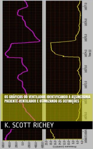Os Gráficos do Ventilador Identificando a Assincronia Paciente-Ventilador e Otimizando as Definições